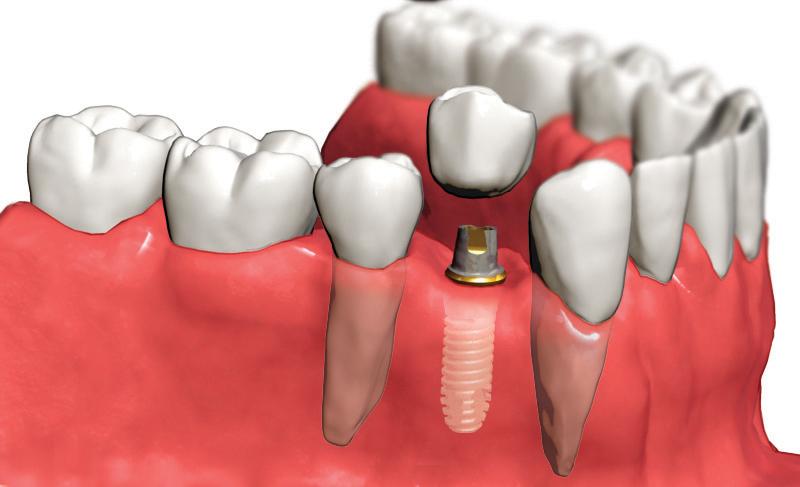 Имплантология зубов