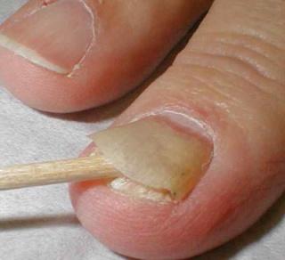 Удаление ногтей