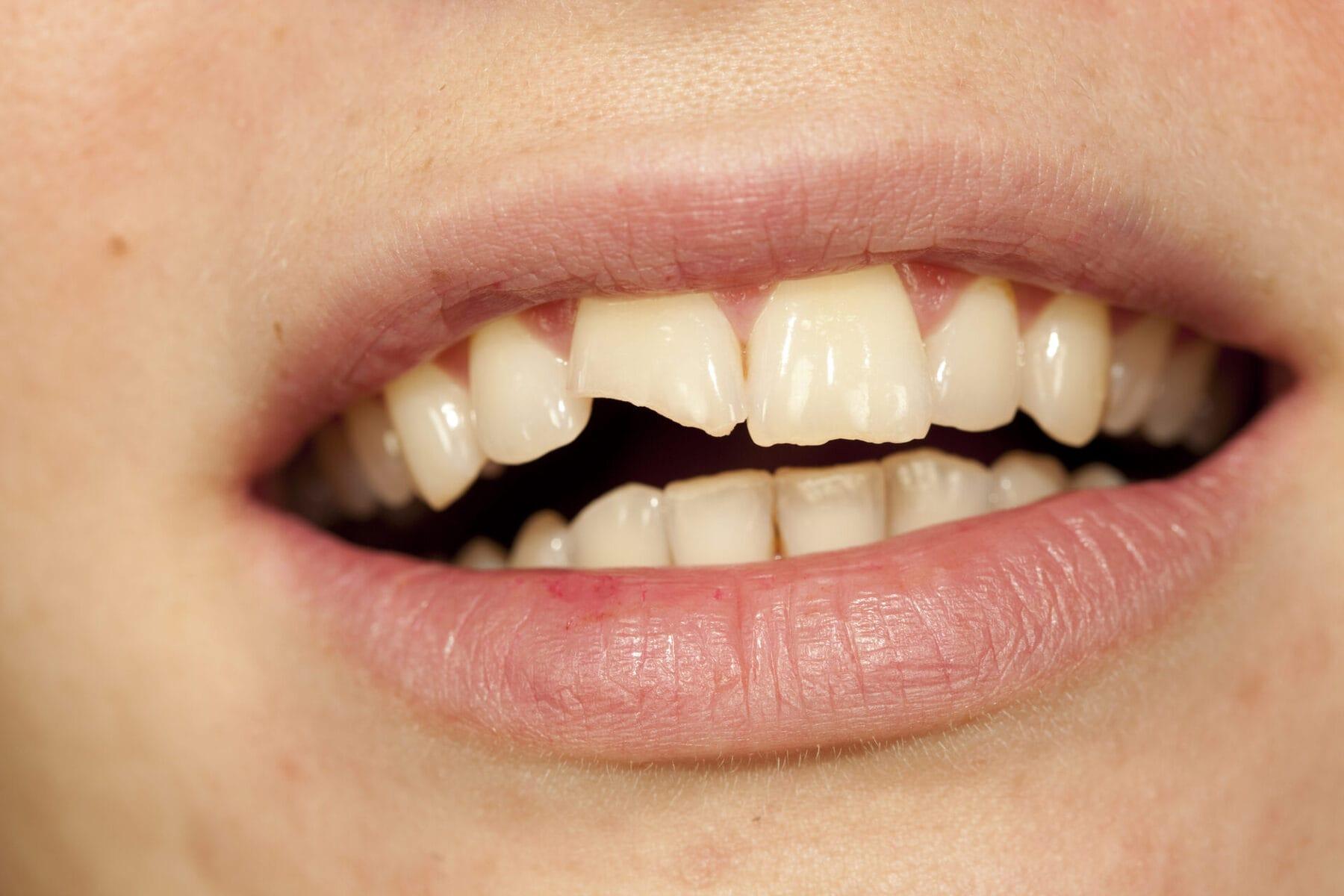 Лечение зубных сколов