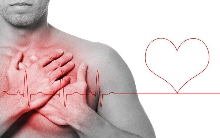 Ишемическая болезнь сердца (ИБС) симптомы, прогнозы ...