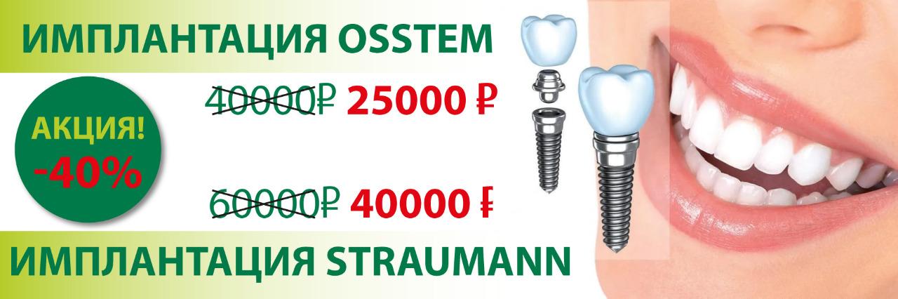 импланты 25000 и 40000
