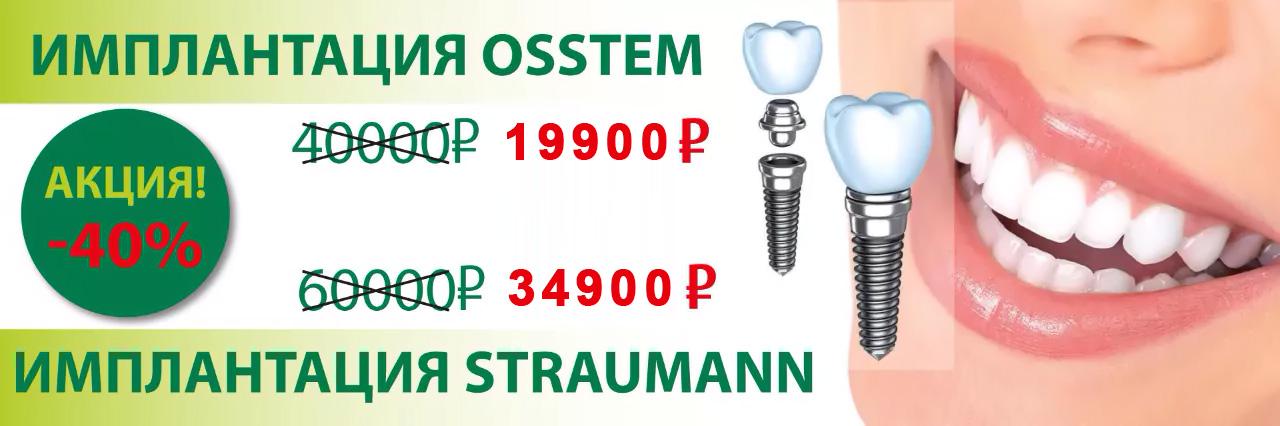 implanty-25000-i-40000