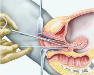 Аспирационная (Пайпель) биопсия