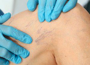 Микросклеротерапия телеангиоэктазий и ретикулярных вен