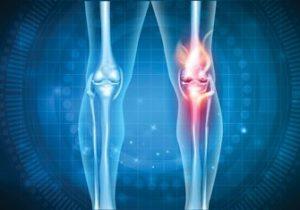 Артрозы различных суставов