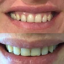 Пластика десневой улыбки