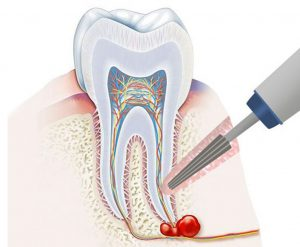 Резекция верхушки корня зуба (апикальная хирургия)