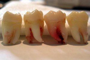 Аутотрансплантация зуба (пересадка зуба)